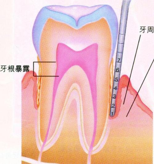 私人口腔医院也能做牙龈刮治_牙龈刮治