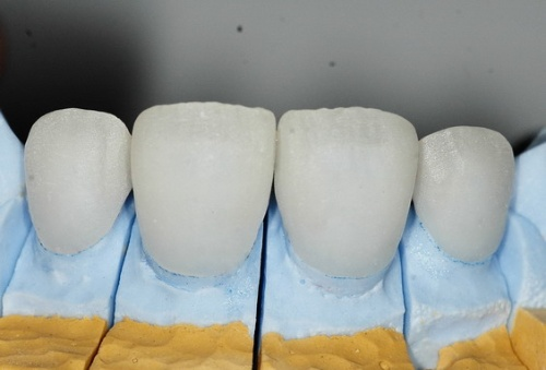 中切牙石膏雕刻图片